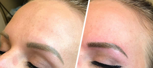 before-after-microblading-eyebrows-1