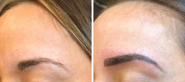 before-after-microblading-eyebrows-2