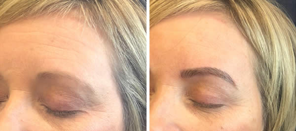 before-after-microblading-eyebrows-3