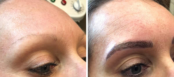 before-after-microblading-eyebrows-4