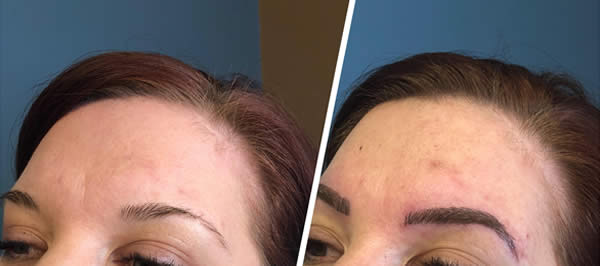 before-after-microblading-eyebrows-5
