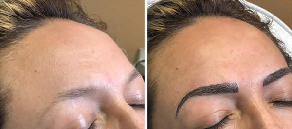 before-after-microblading-eyebrows-6