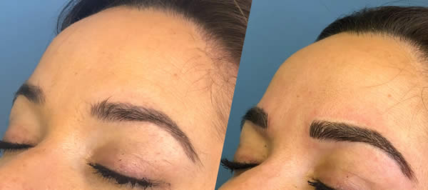 before-after-microblading-eyebrows