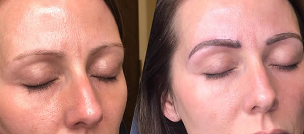 eyebrow-microblading-spa-munster-2
